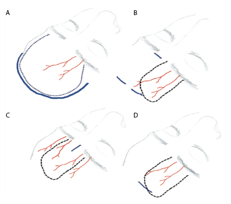 Figure 1. The pericranial flap evolution. A) Bicoronal incision. B) Zanation approach, performing two incisions in the scalp and one in the glabella. C) Single-port approach, through a unique incision in the glabella. D) Single port hidden in the scalp, avoiding any visible scar.