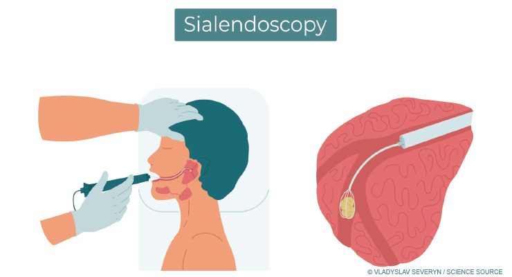 Sialendoscopy Updates: A Look at New Technology, Cost, and Frequency of Use