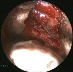 Figure 6: Intraoperative view after placement of hydroxyapatite cement, used to cover bony defects, plate and screws.