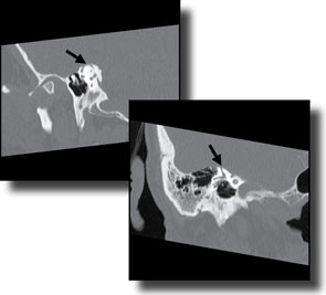 CT scan of right superior semicircular canal, in the Pöschl (a) and Stenvers (b) views, demonstrating a dehiscence.