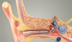 An image of the MAXUM hearing implant, which uses a speaker to amplify sound.
