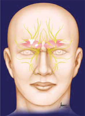 Surgery for migraine headaches in the forehead area involves removal of the frowning muscles, which irritate two nerve branches on each side of the forehead.