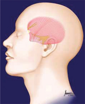 Surgery in the temple trigger site involves removal of a tiny branch of the trigeminal nerve.