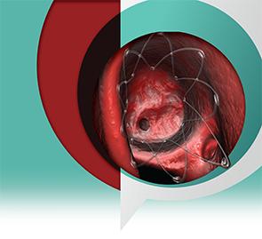 propel steroid eluting stent