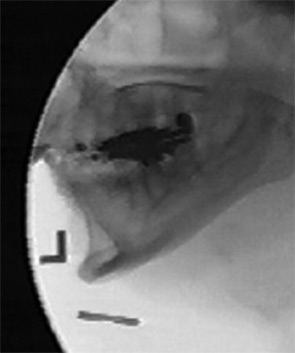 Fluoroscopic image, illustrating the pharynx at maximum constriction.