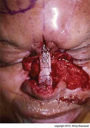 Two-Stage Process Repairs Internal Lining in Nasal Deformity